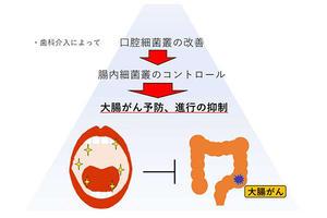【医歯学総合研究科】世界初!口腔細菌が大腸がんの発生に関与している可能性を発見